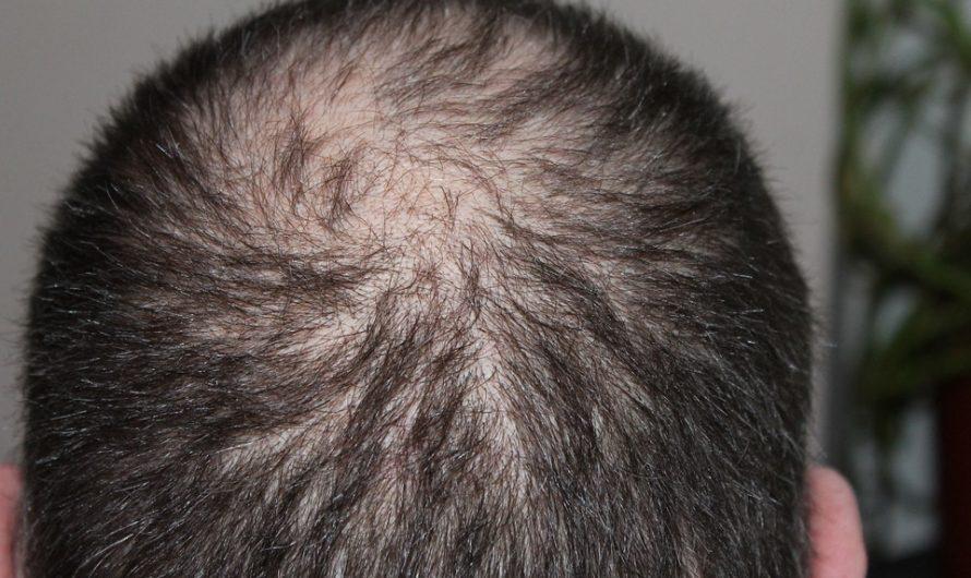 Pourquoi la greffe de cheveux est plus fréquente chez les hommes?